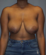 Breast Reduction and Breast Lift